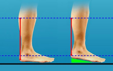 Tendon length with and without a heel lift.