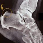 Haglund's deformity: causes, treatment and more